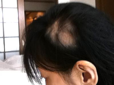 多発型円形脱毛症写真