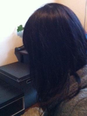 円形脱毛症 写真