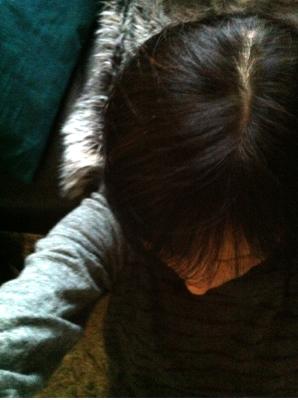 円形脱毛症 かつら