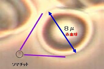 somatid_image19.jpg