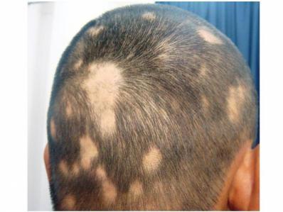 円形脱毛症3