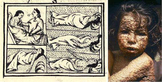 天然痘の図