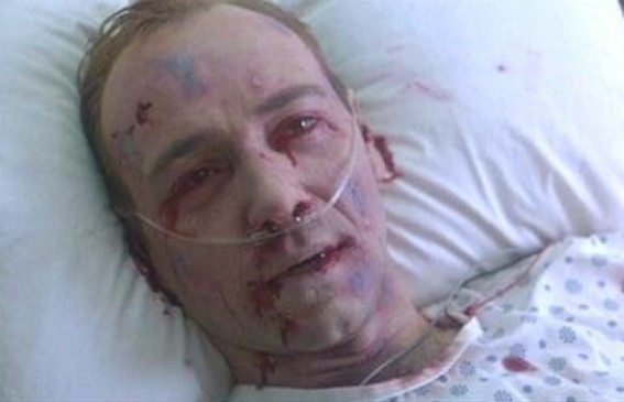 エボラ出血熱患者 画像 01