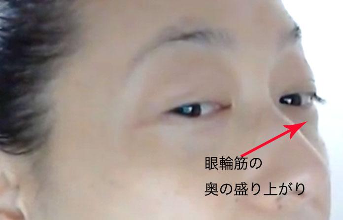 目のくぼみ