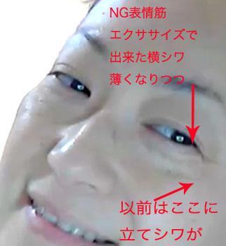 目尻の立てシワ