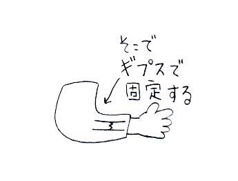骨折003