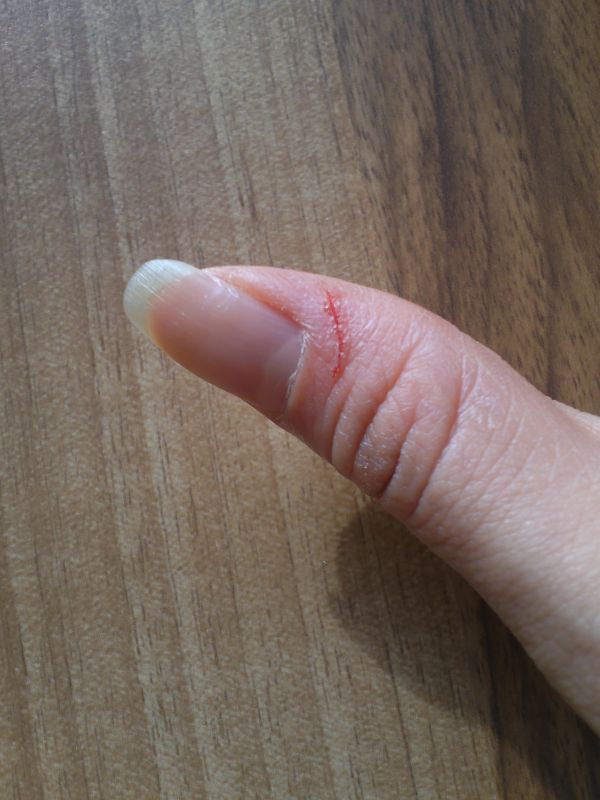切った親指