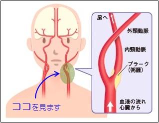 頸動脈正面