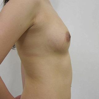 s2011 03 23_4380